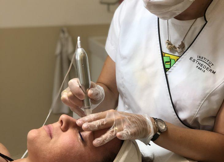 traitement de peau-microneedling-strasbourg